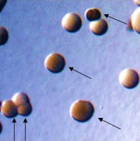 Opacity phenotypes of colonies of N. gonorrhoeae. Arrows point to colonies of bacteria expressing Opa proteins. From Ball and Criss, Journal of Bacteriology 2013.
