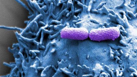 EHEC adhering to epithelial cells