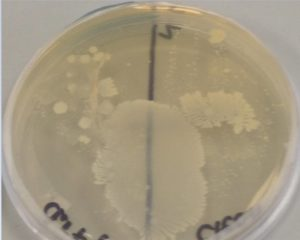 grown bacteria on a plate